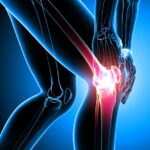 What is osteoarthritis and what can I do to manage my symptoms?